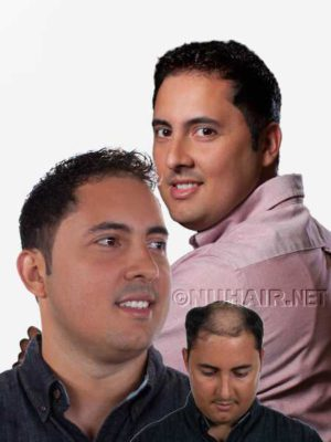 Men's Hair Replacement System Hair Restoration for Male Hair Loss DFW Texas
